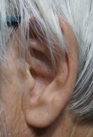 testimony Left ear